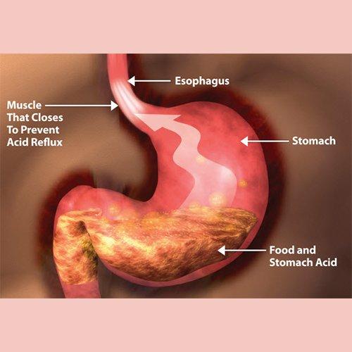 Dr Della Parker_The Danger of Heart Burn Drugs and Natural Alternatives
