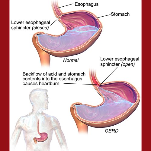 dr-della-parker_improved-stomach-acid-in-just-one-minute