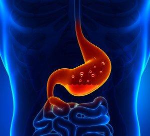 Dr Della Parker_SOS_Save Our Stomach acid
